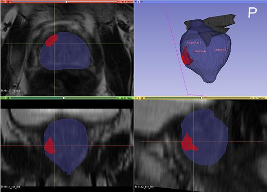 prostate cancer scans