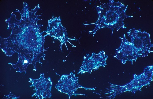 Cancer cells in electron microscope scan (Photo: Pixabay)