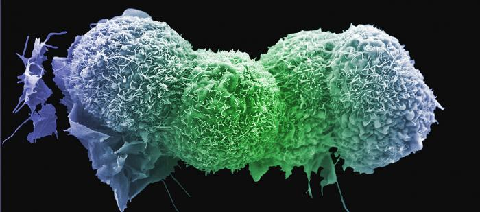 Lung cancer cells. Image credit: Anne Weston, Francis Crick Institute