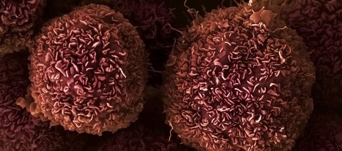 Pancreatic cancer cells: one of 43 types of cancer studied by the Wellcome Sanger Institute for gene fusions. Image credit: Anne Weston, Francis Crick Institute