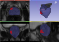 Image: illustrates output by the software Colours shown are: • Red: index lesion • Blue: prostate organ • Grey: seminal vesicles